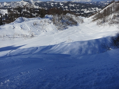 松之山温泉スキー場22