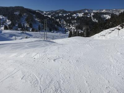 松之山温泉スキー場31